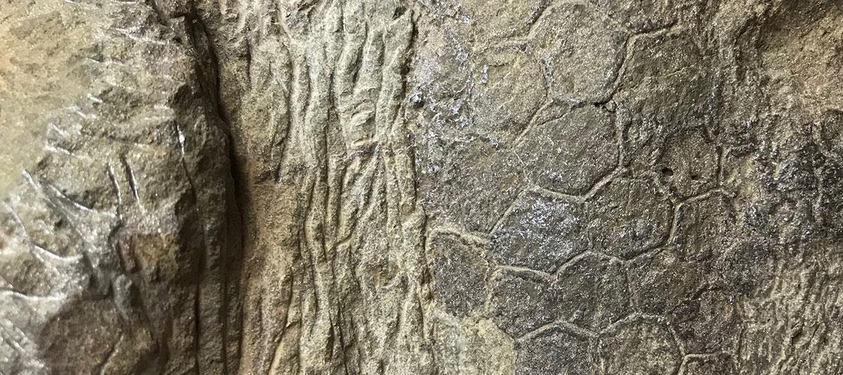 Mid-forearm skin from Dakota showing fingernail sized scales